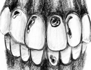 Cavitites_Dental