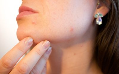 Acne is a common enemy of everyone.